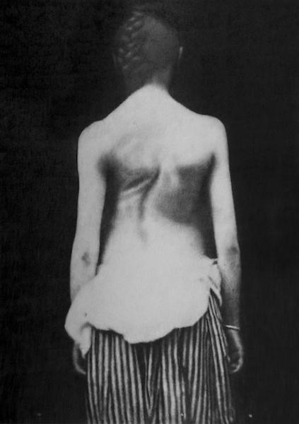 Eric Manigaud - Ollier, scoliose, 1884, 2018