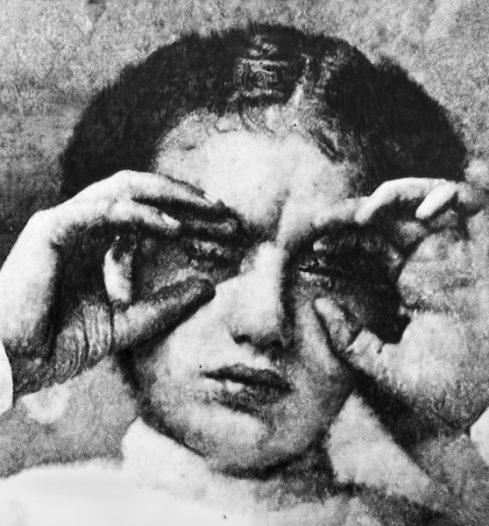 Eric Manigaud - Trachoma pannus keratitis, 1916